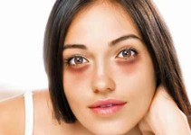Ten 10 Tips to Remove Dark Circles Under the Eyes